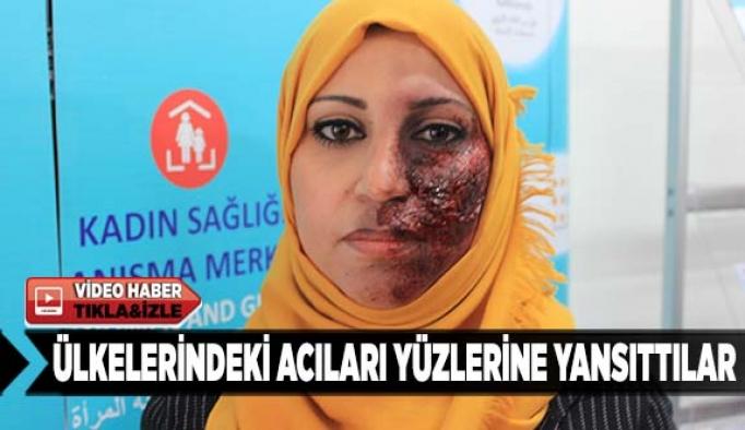 Ülkelerindeki acıları yüzlerine yansıttılar
