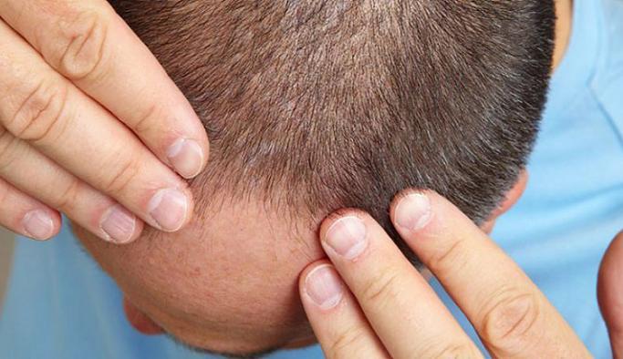 Dhi Saç Ekimi Nedir, Nasıl Yapılır?