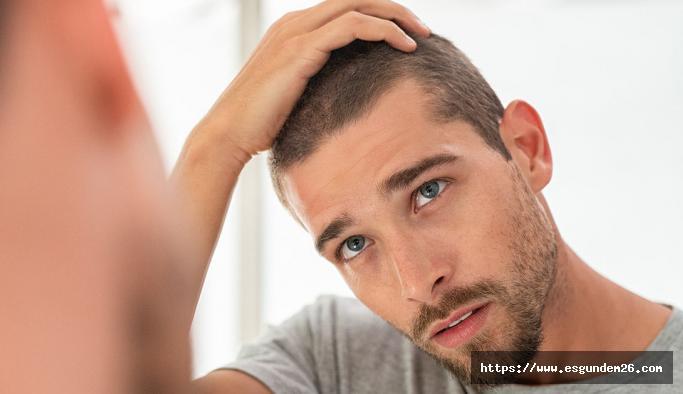 Saç Ekimi İşlemi